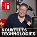 Nouvelles technologies - Un œil totalement bionique